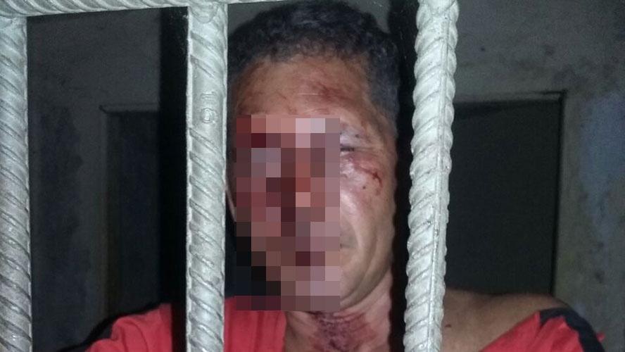 Foto de Acusado de abusar de menina em Ourilândia do Norte é espancado