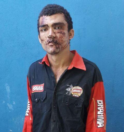 Foto de Homem só não foi linchado após invadir residência em Redenção porque a PM chegou a tempo de socorre-lo