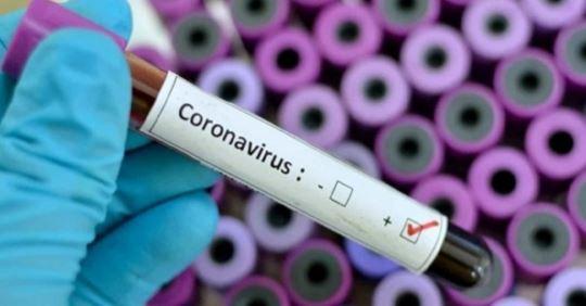 Foto de Boletim epidemiológico aponta mais um caso suspeito para COVID-19 em Xinguara